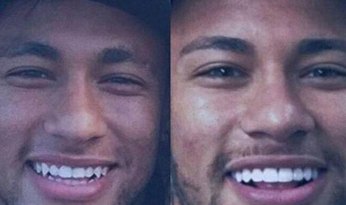 dentes-neymar