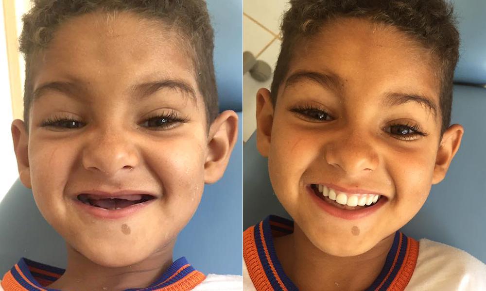 Ele só queria ter um sorriso como o dos colegas, e uma dentista realizou esse sonho