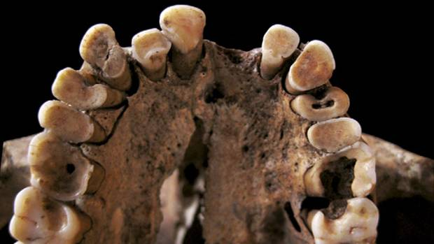Australopitecus Cariadus