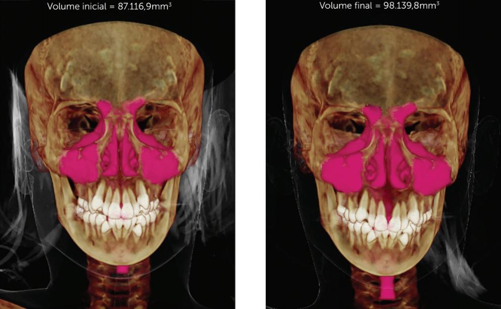 Alteração volumétrica antes e depois da ERM